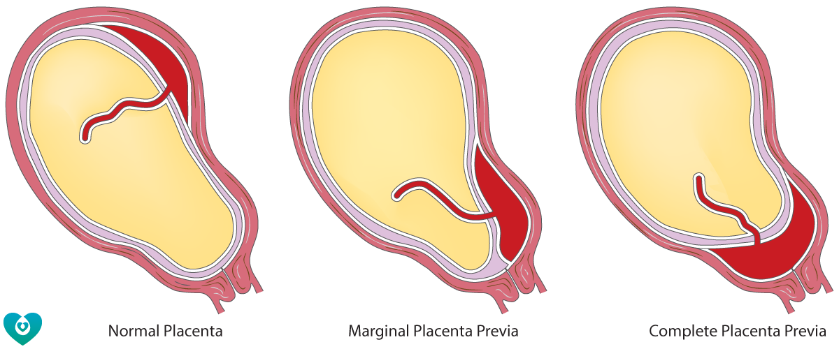 Placental location