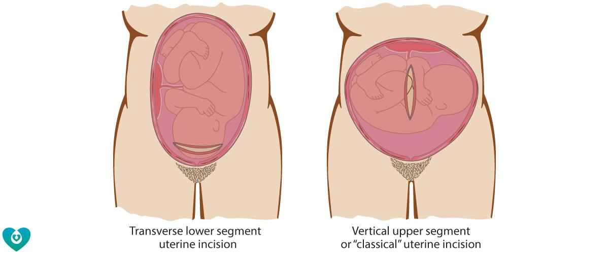 Caesarean incisions